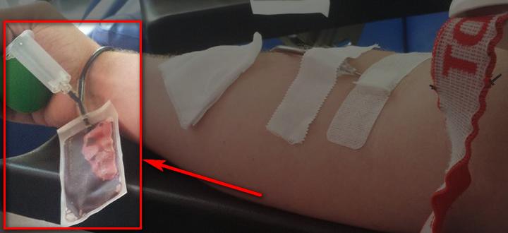 Próbki do badań wirusologicznych należy pobierać od dawców podczas zabiegu pobierania krwi lub jej składnika.