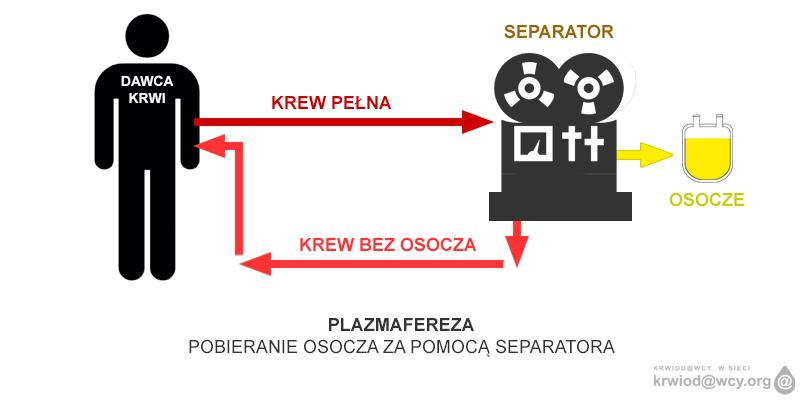 Pobieranie osocza metodą aferezy (plazmafereza)